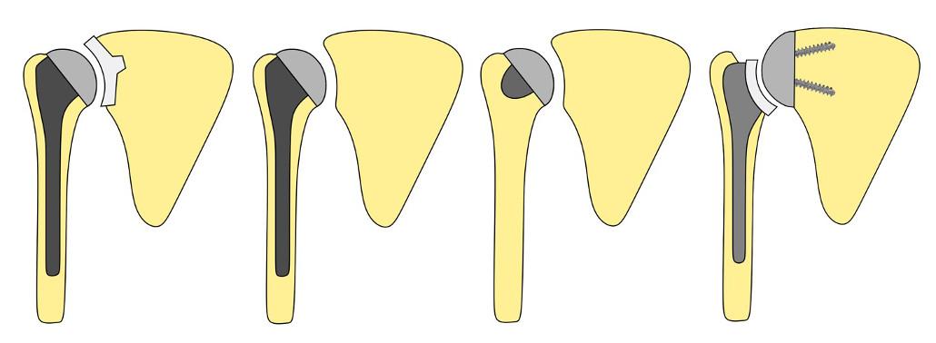 Tipos De Prótesis De Hombro