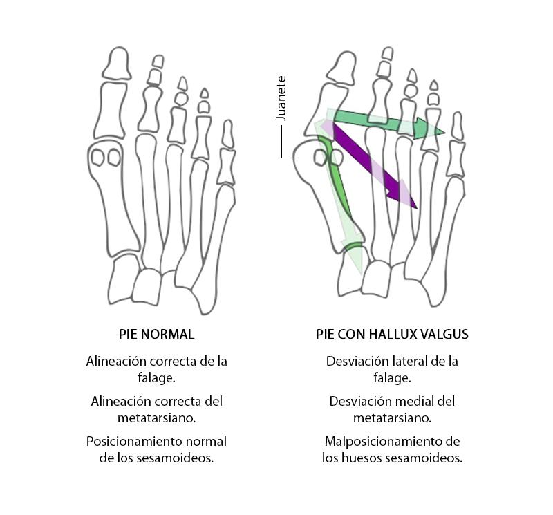 Cirugía del pie: Hallux valgus o juanetes – MBA Blog