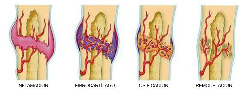cómo se cura una fractura