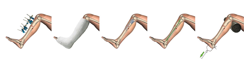 material de osteosíntesis