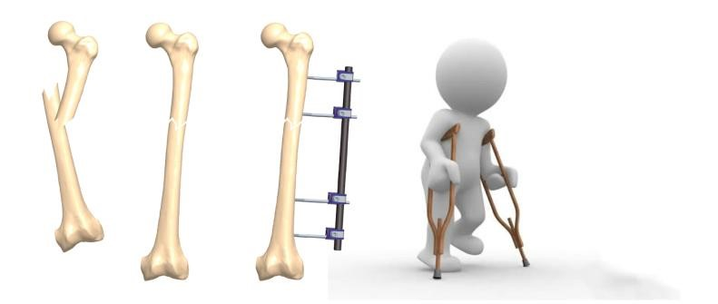 fijadores para fracturas