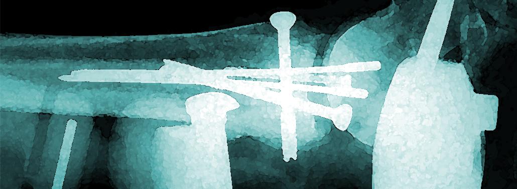 Los Fijadores Externos En El Tratamiento De Las Fracturas