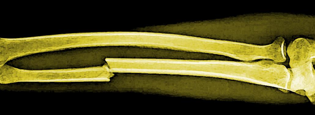 Preguntas Frecuentes Sobre Las Fracturas óseas