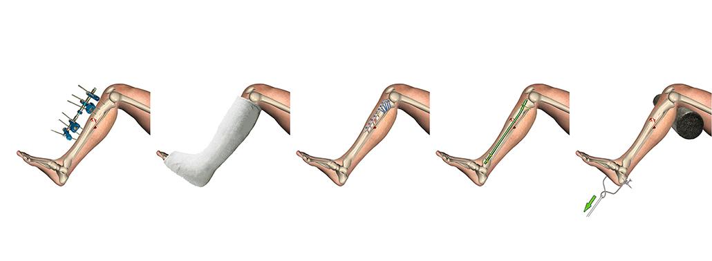 Fracturas óseas: Todo Lo Que Necesita Saber