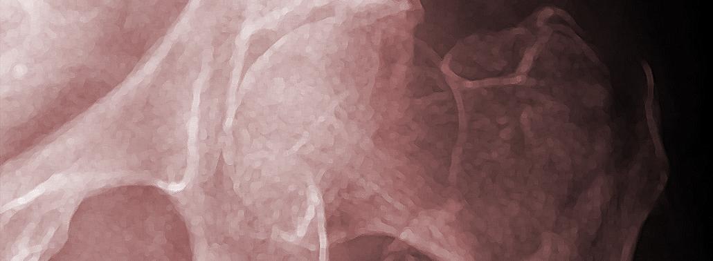 ¿Qué Es Una Fractura De Cadera? Tipos De Fractura Y De Paciente