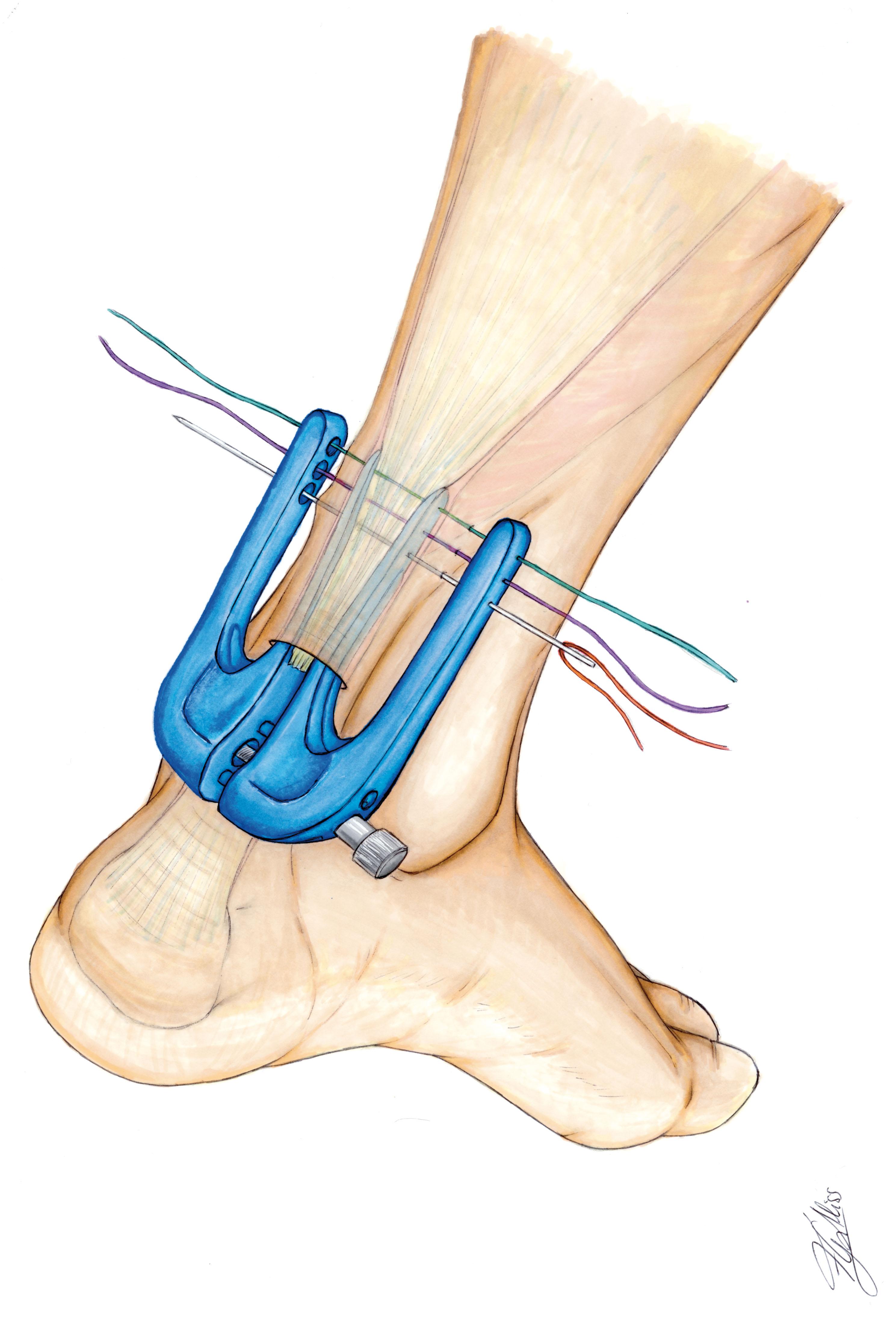 El sistema Achillon para la reparación percutánea del tendón de Aquiles