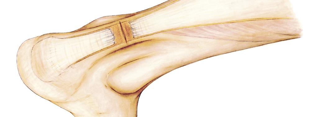 Reparación Percutánea Del Tendón De Aquiles. Sistema Achillon