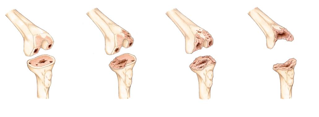 ¿Cuál es la mejor prótesis de rodilla para cada tipo de paciente?