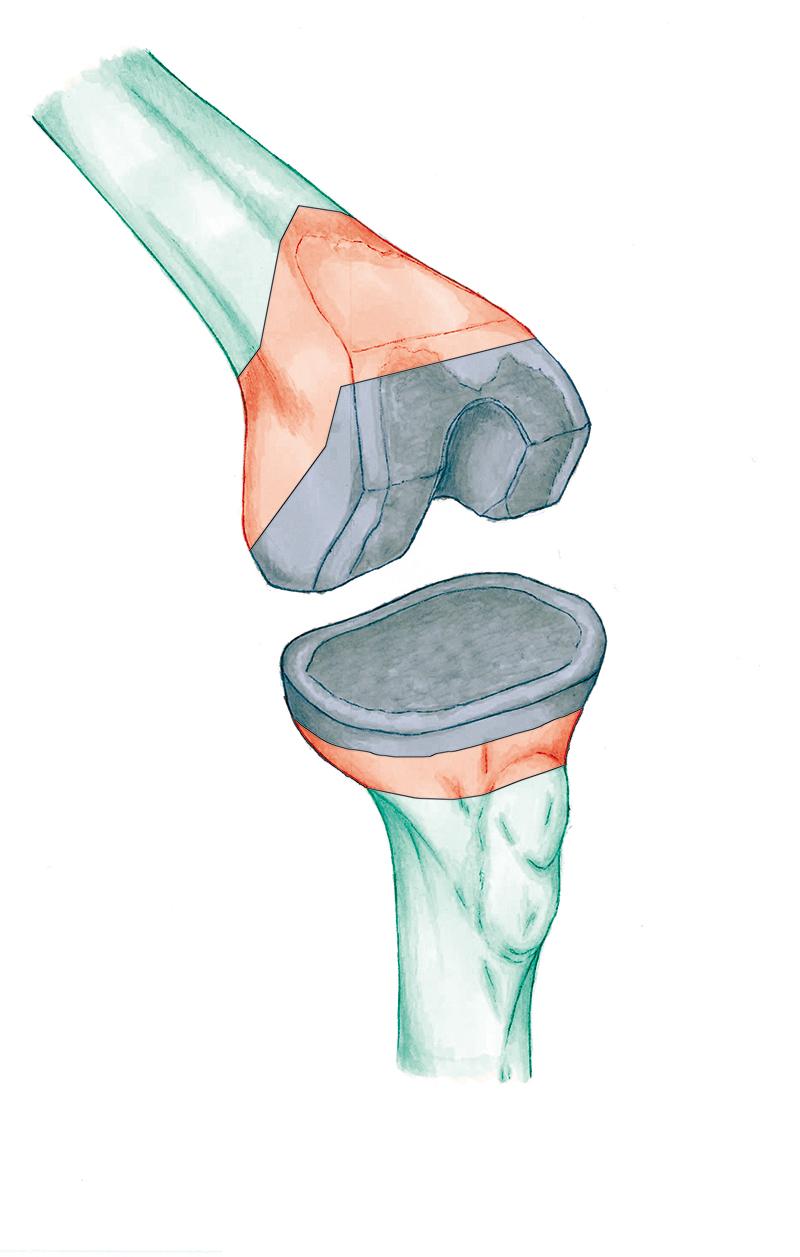 ¿Qué protesis de rodilla usar?