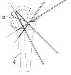 Reducción cerrada y fijación percutánea para fractura de hombro