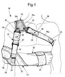 tratamiento conservador de fractura de hombro