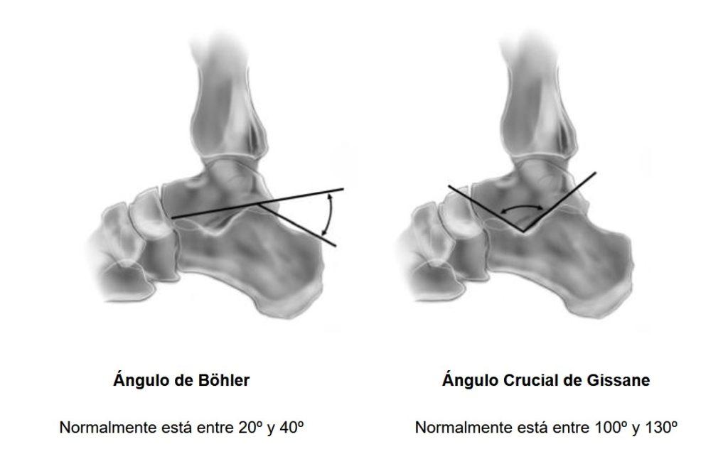 ángulos de Böhler y de Gissane del hueso calcáneo