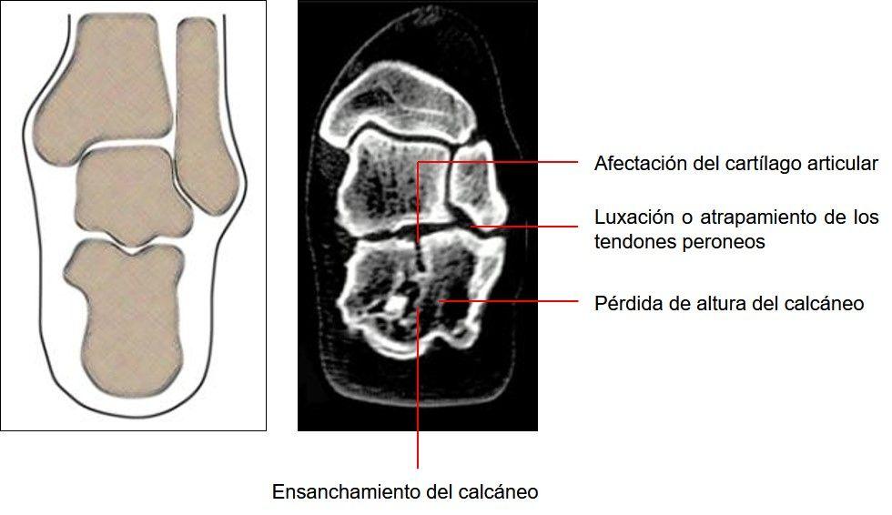 secuelas en las fracturas de calcáneo